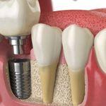 Fingerpost Dental Douglas Cork profile image.